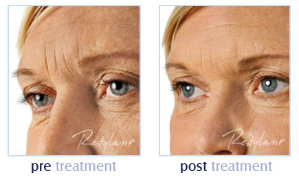 Dermal fillers for wrinkles