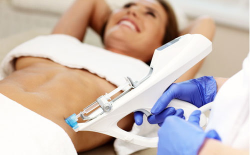 CelluCare Mesotherapy Treatments in Sandton