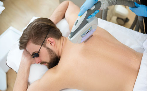 Laser Hair Removal in Sandton