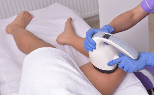 Cellulite Treatments VelaShape in Sandton